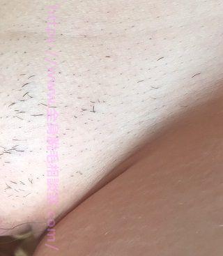 アリシアVIO医療脱毛2回目から1ヶ月後:左側